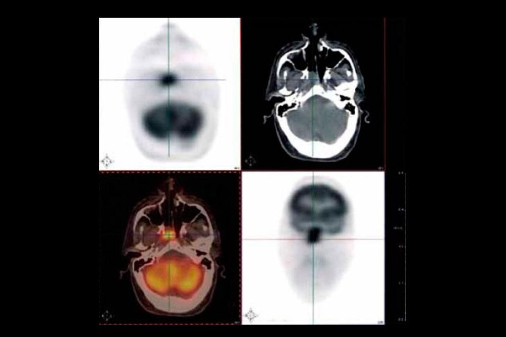 Neurología Prevención y diagnóstico precoz