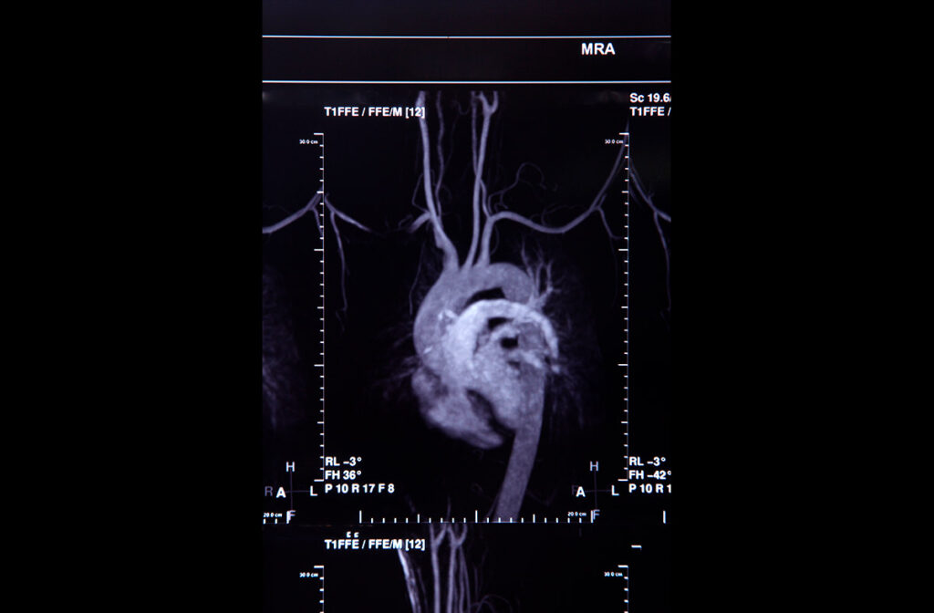 gammagrafia cardiaca Zaragoza