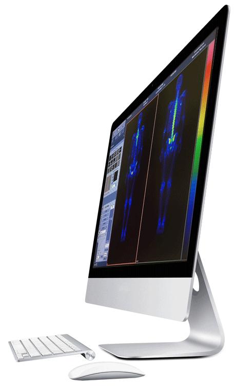 monitor gamagrafia