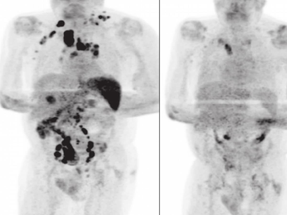 curación paciente linfoma Hodgkin covid-19
